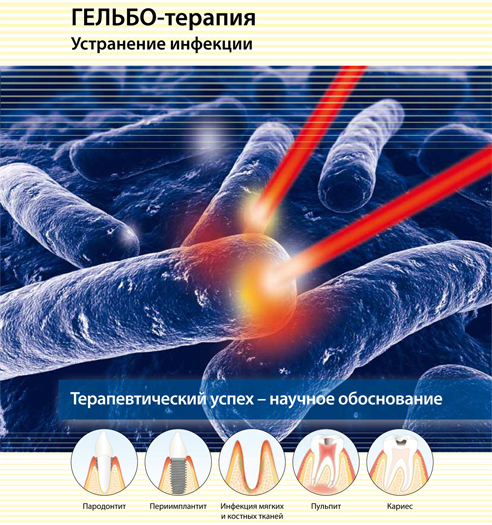Гельбо-терапия в Алматы