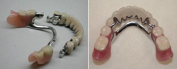 byugelnye-protezy-s-zamkovym-krepleniem