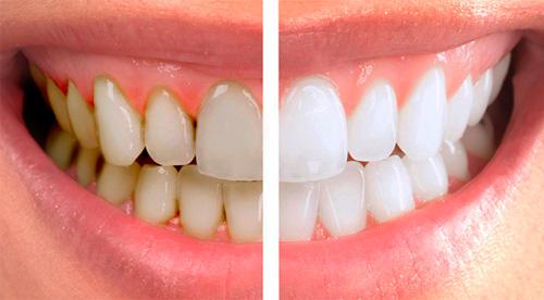professionalnaya-chistka-zubov
