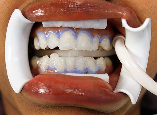 vidy-otbelivaniya-zubov-3