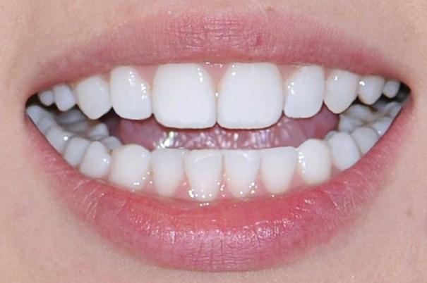 виниры на зубы с пломбами
